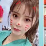 栗田玲奈は東京美容外科の広告塔?スマホで手術中の動画インスタ投稿炎上!自分も整形?